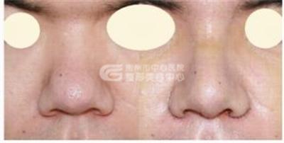 鼻头缩小手术的价格和什么因素有关