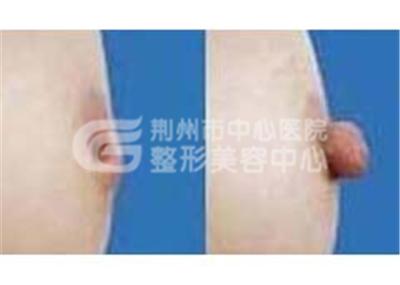 乳头内陷可通过手术矫正