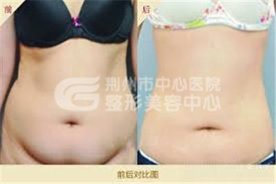 腰腹吸脂术让您的腰部更加有曲线