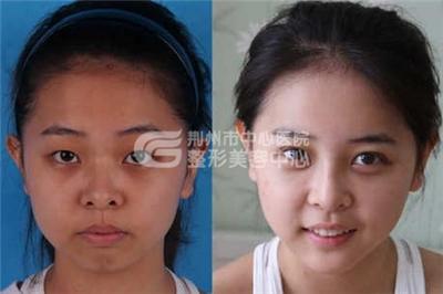 荆州专家介绍鼻头缩小的方法