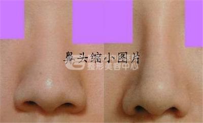 荆州沙市鼻头缩小整容多少钱?