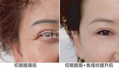 荆州中心医院提眉术的优点