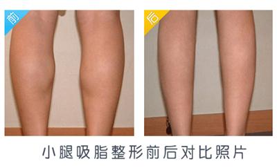 荆州小腿吸脂有哪些注意事项呢?