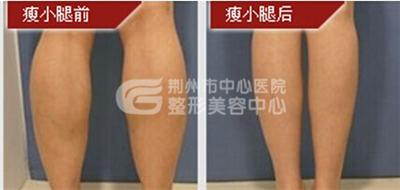 小腿吸脂手术的价格受什么因素的影响?