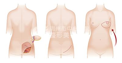 乳房再造术*适合哪些求美者