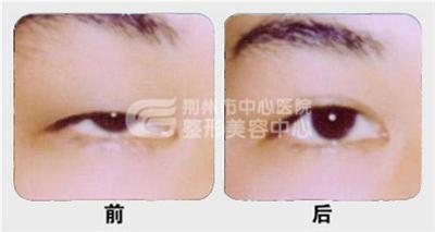 专家详解眼部上睑下垂手术