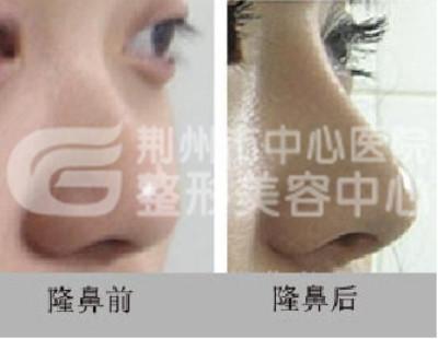 荆州隆鼻整形美容医院