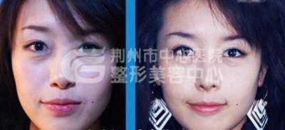 荆州韩式隆鼻有什么特点?