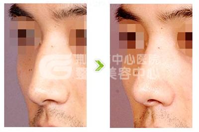 荆州驼峰鼻的分级和治疗方案