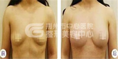 乳房下垂矫正,让你的乳房坚挺如初