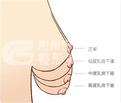 乳房下垂矫正价格汇总
