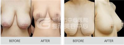 乳房下垂矫正手术  返回年轻不是梦想