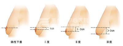 荆州中心医院乳房下垂矫正手术全过程大公开
