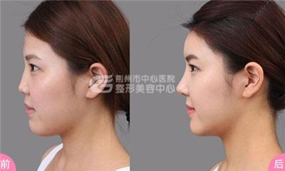 隆鼻失败修复术拯救失败的鼻型