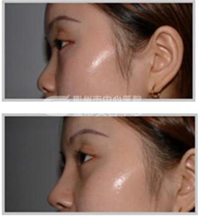 隆鼻失败修复术恢复面部整体美观