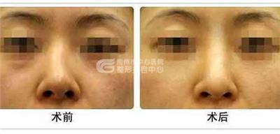 隆鼻失败修复术适宜哪些症状选择
