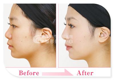 隆鼻失败修复术的原则您是否都知道