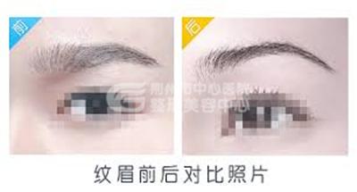 荆州激光洗纹眉价格多少钱