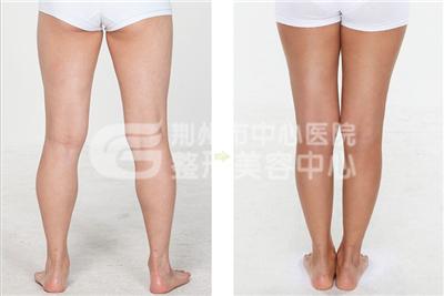 荆州小腿吸脂后如何护理?