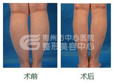 荆州小腿吸脂术要注意的问题有哪些?