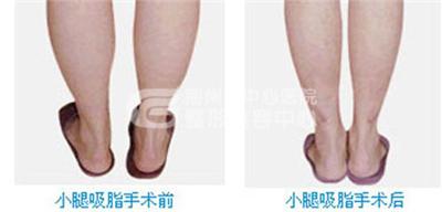 小腿吸脂手术一般需要多少钱?