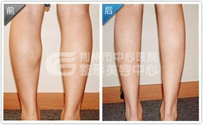 荆州小腿吸脂手术的费用和什么因素有关?