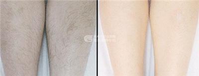 激光脱腿毛的价格影响因素有哪些?