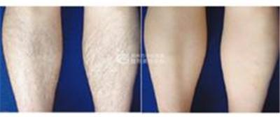 女性怎么去腿毛才彻底