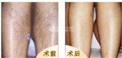永久去除腿毛的方法