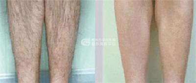 激光去腿毛效果怎么样?