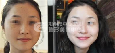 彻底祛除脸上的雀斑一般需要做几次治疗?