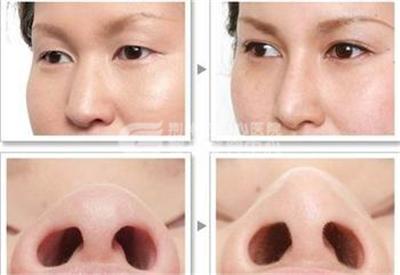 荆州做鼻头缩小手术*好的医院?