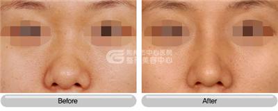 鼻头缩小手术的两大有效方法