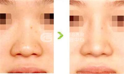 鼻头缩小 鼻头缩小手术