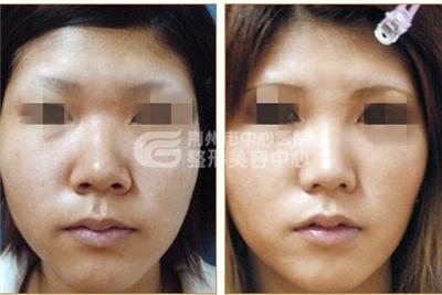 荆州做鼻头缩小术要多少钱?