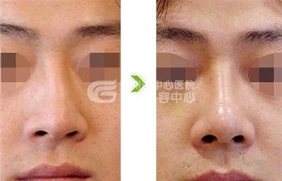 鼻头缩小术后护理有哪些重要事项