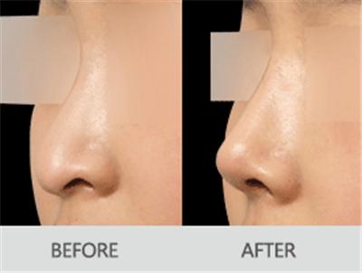 荆州鹰钩鼻矫正手术的具体操作过程