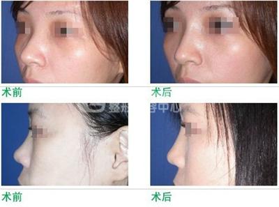 隆鼻失败修复美容手术