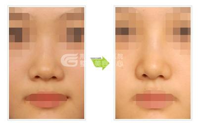 隆鼻失败修复价格与哪些因素有关