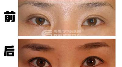 双眼皮修复手术正确的护理事项
