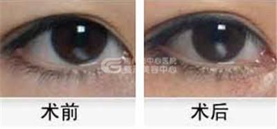 荆州的双眼皮修复手术价格是多少?