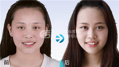 荆州双眼皮修复要多少钱与哪些因素有关呢?