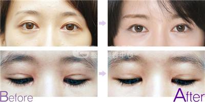 不同情况下的双眼皮修复手术的注意事项有哪些?