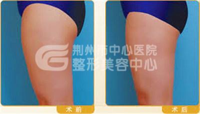 大腿吸脂手术的全过程