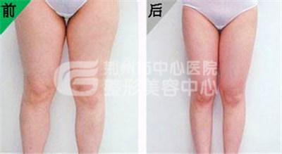 大腿吸脂手术的护理情况