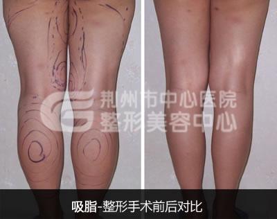 荆州小腿吸脂术后怎么护理好?