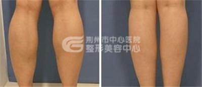 荆州小腿吸脂术前准备有什么?