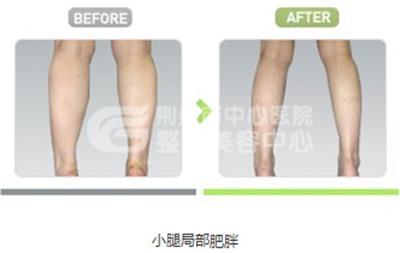 小腿吸脂术后护理该怎么办呢?
