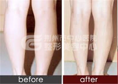 小腿吸脂手术的价格受哪些因素的影响?