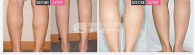 小腿吸脂术后的注意事项有什么呢?